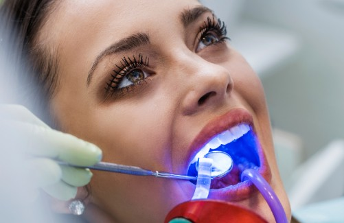 Dental Laser Procedures, Courtenay Dentist